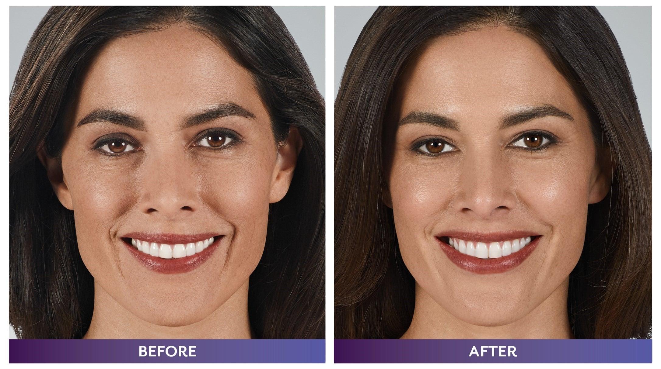 Juvéderm® for Cheeks, Smokers Lines, Lips, & Nasolabial Folds