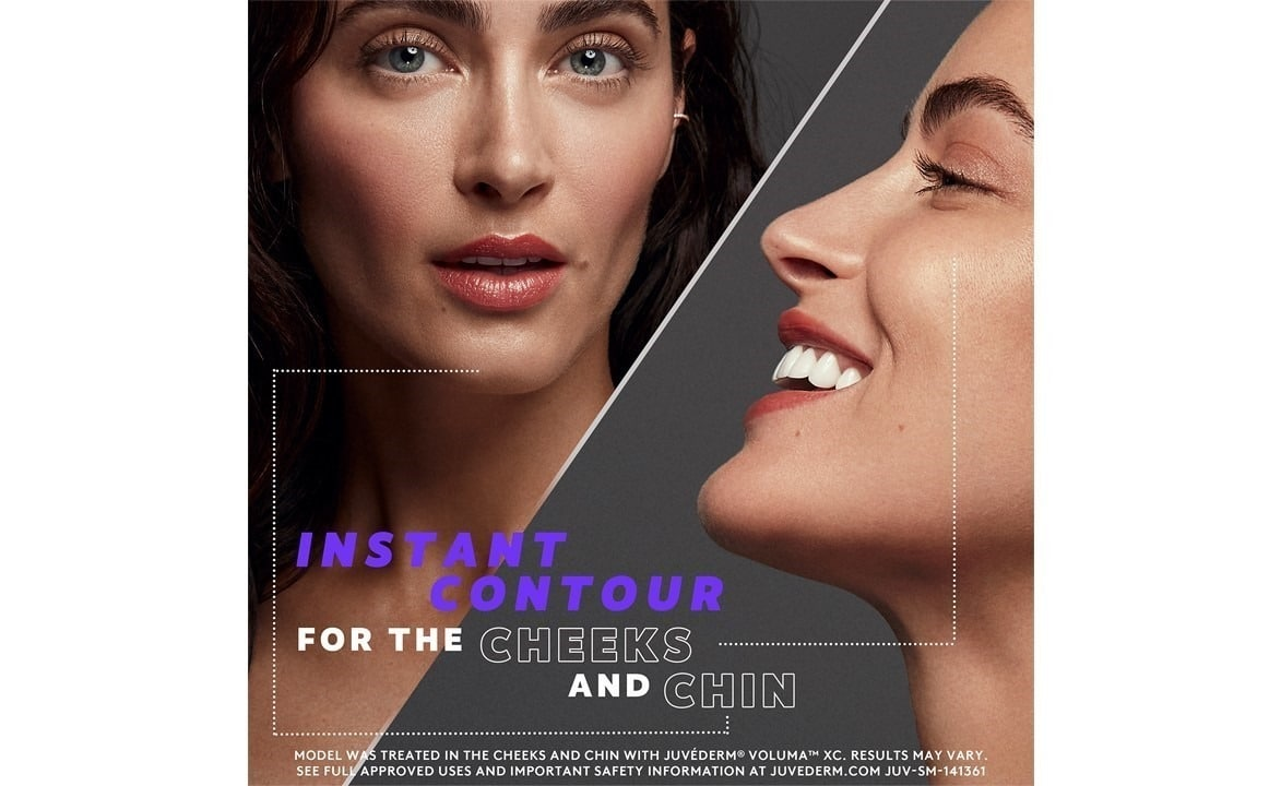 Juvéderm® for Cheek and Chin