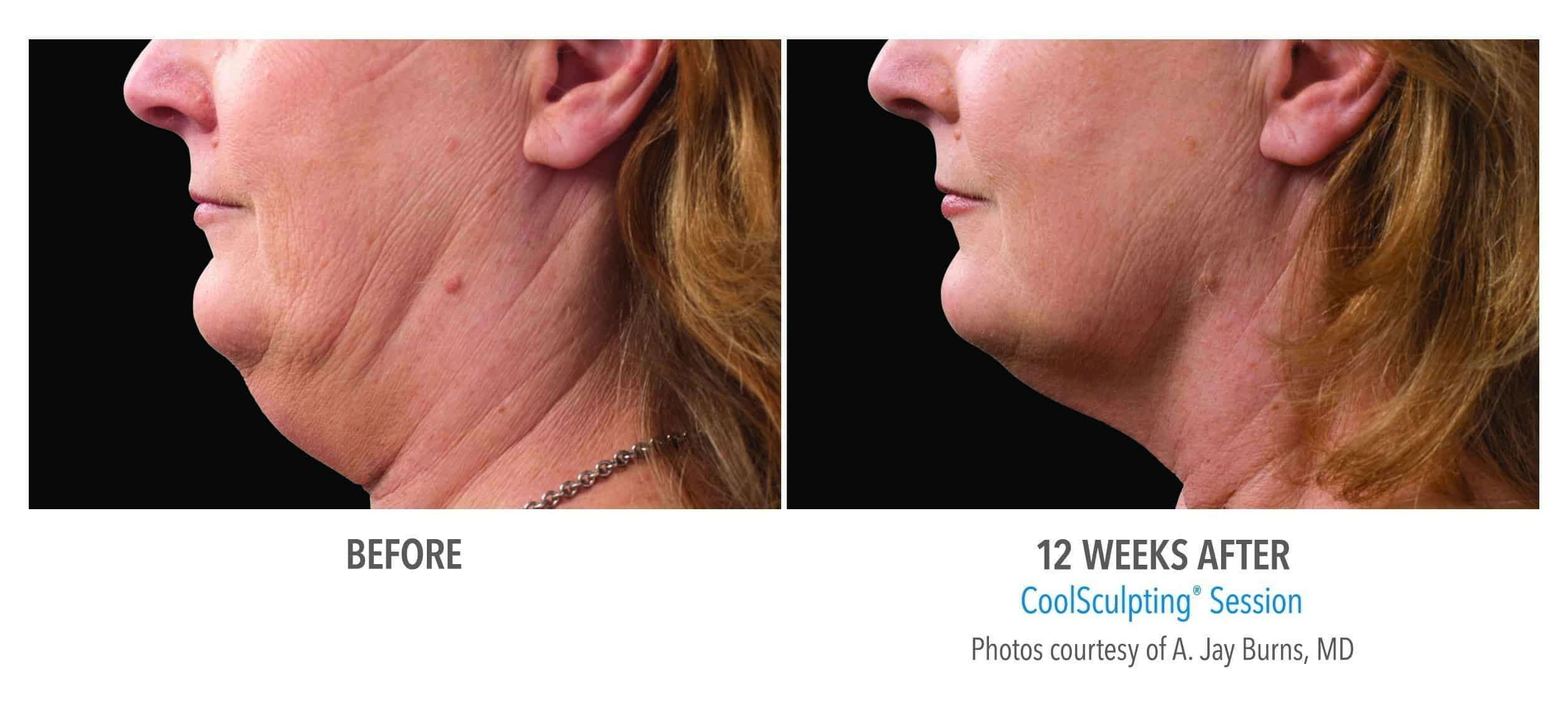 CoolSculpting® Chin Before and After