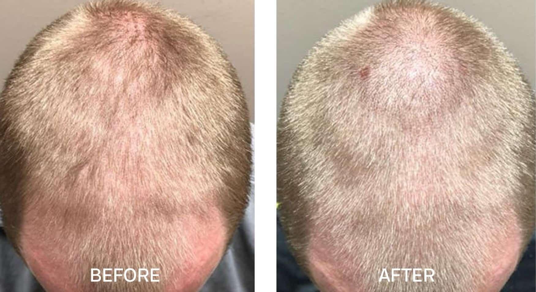 HAIRestart® Before & After