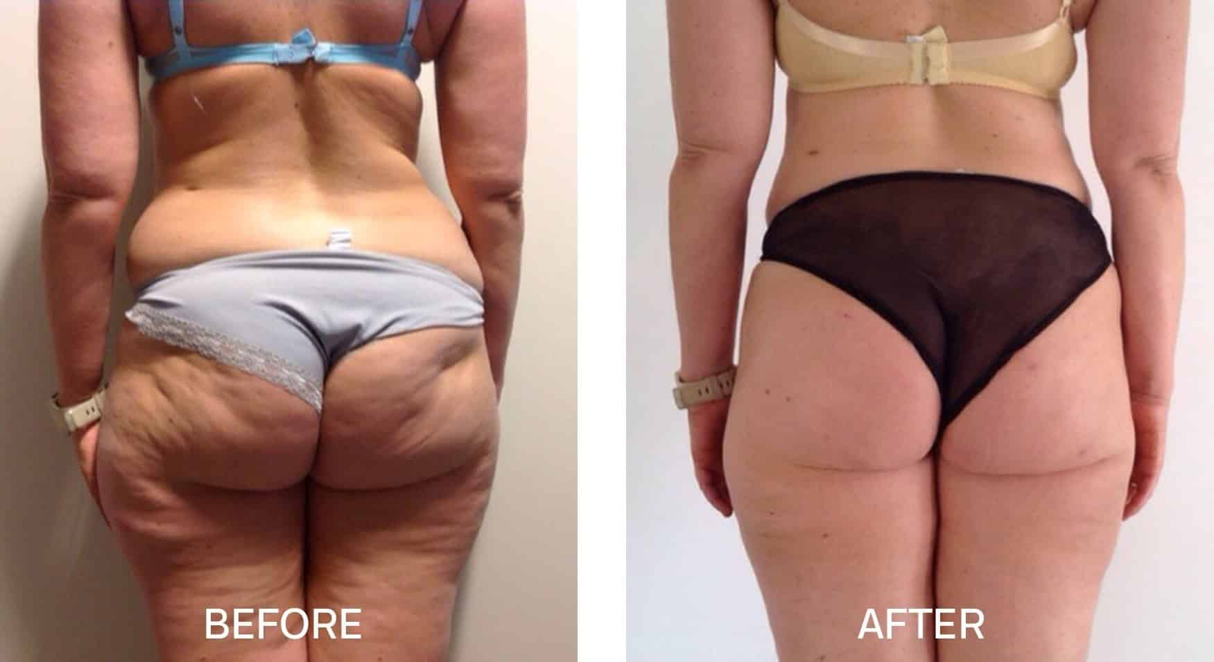 TightSculpting® for Buttocks and Thighs