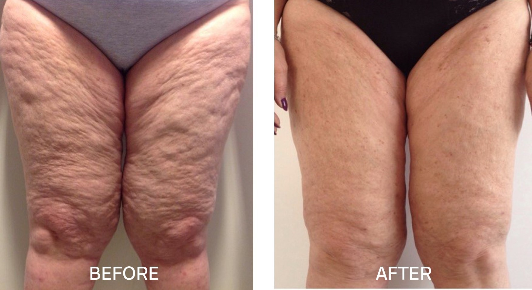 TightSculpting® for Thighs