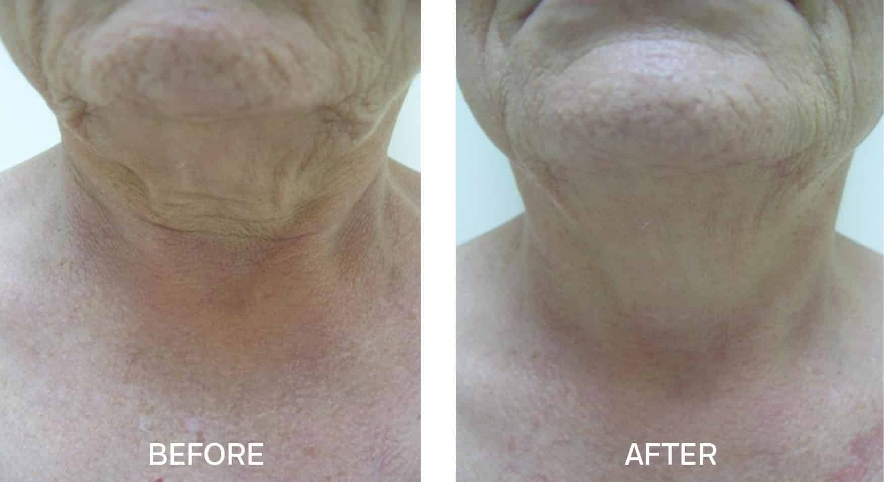 TightSculpting® for Neck/Chin