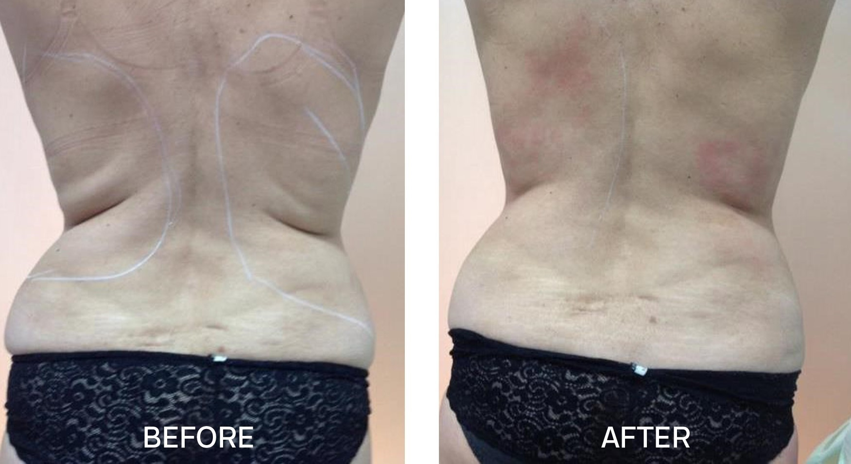 TightSculpting® for Flanks
