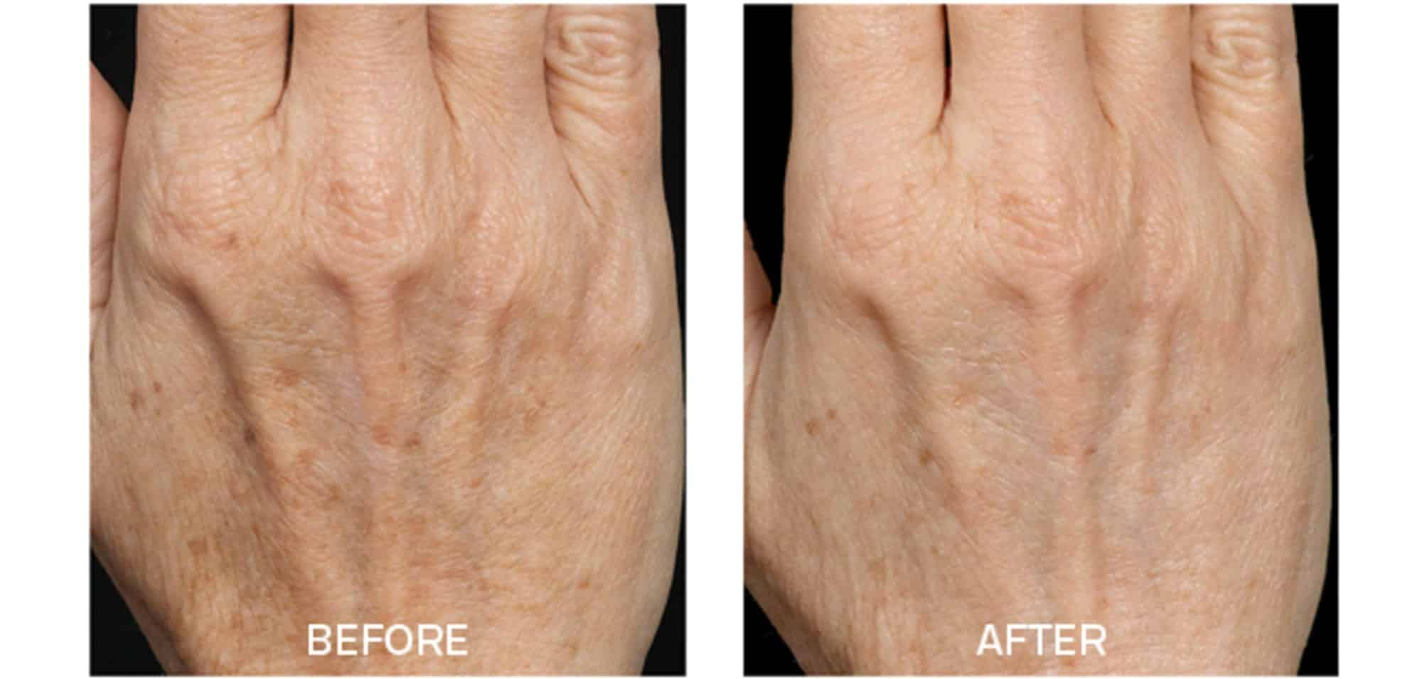 Fraxel for Aging Hands