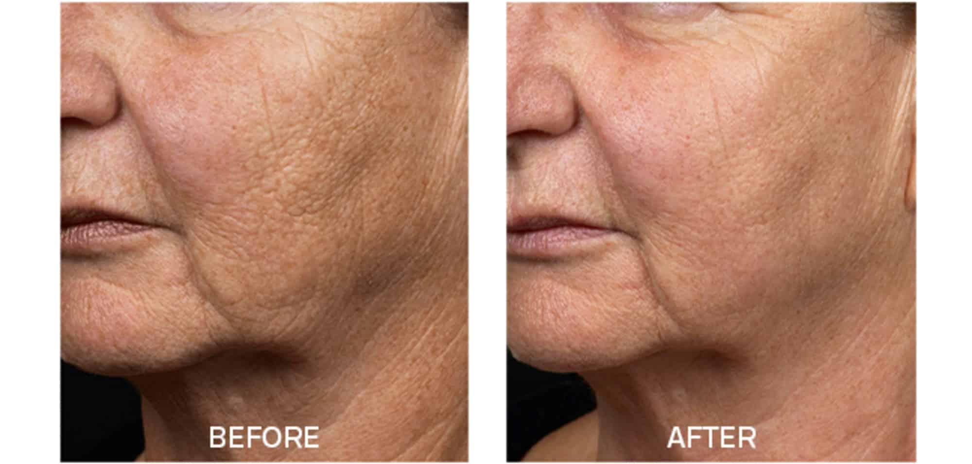 Fraxel for Textured Skin