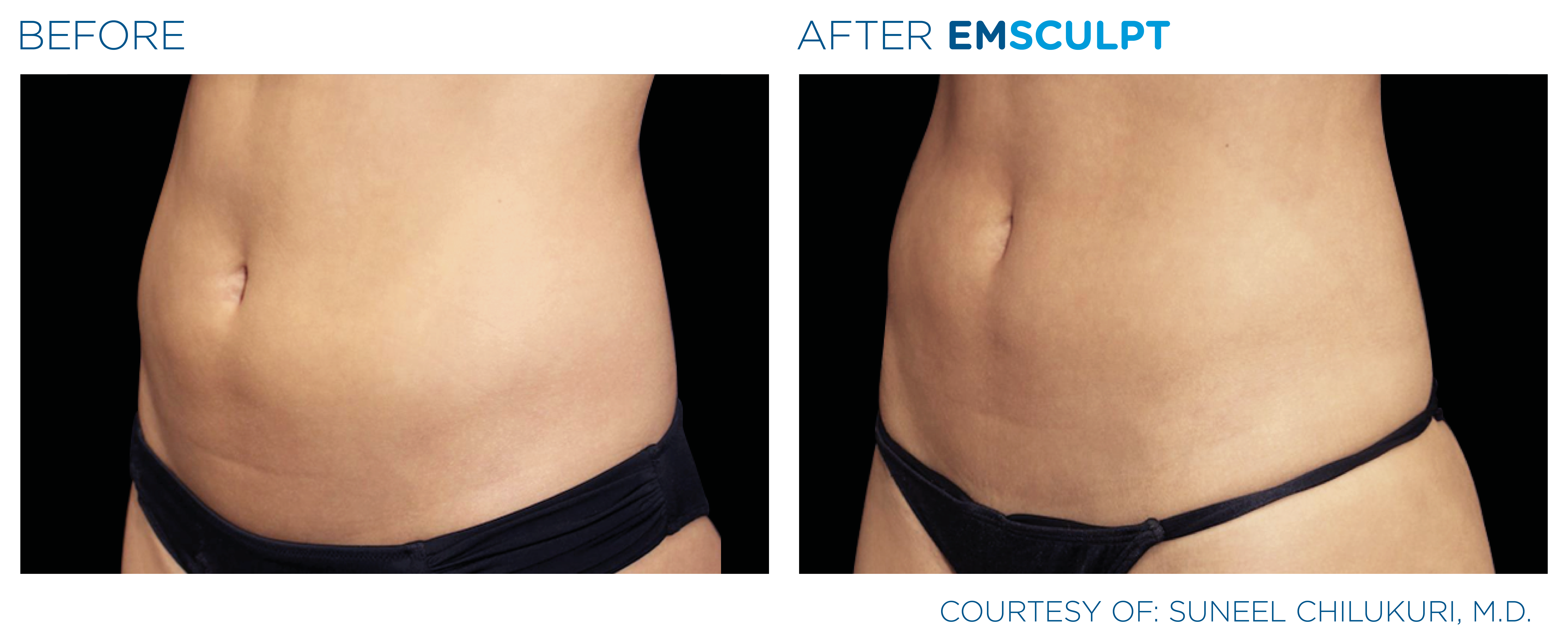 Before and After EMSculpt for the Stomach