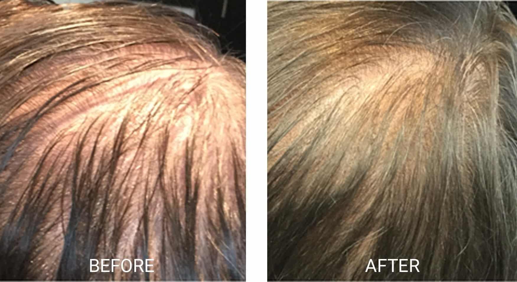 PRP® Hair Restoration