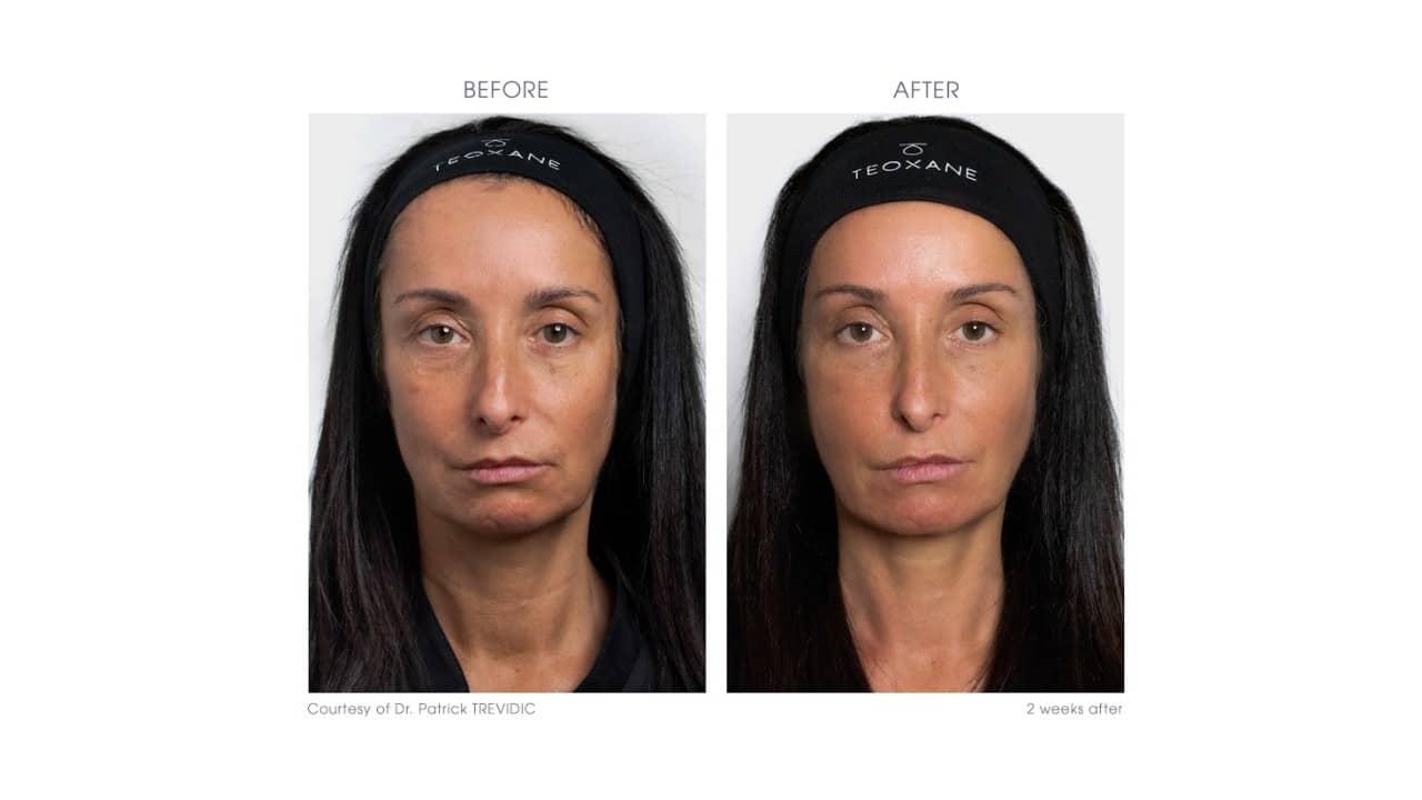 RHA® 2 & 3 for full face