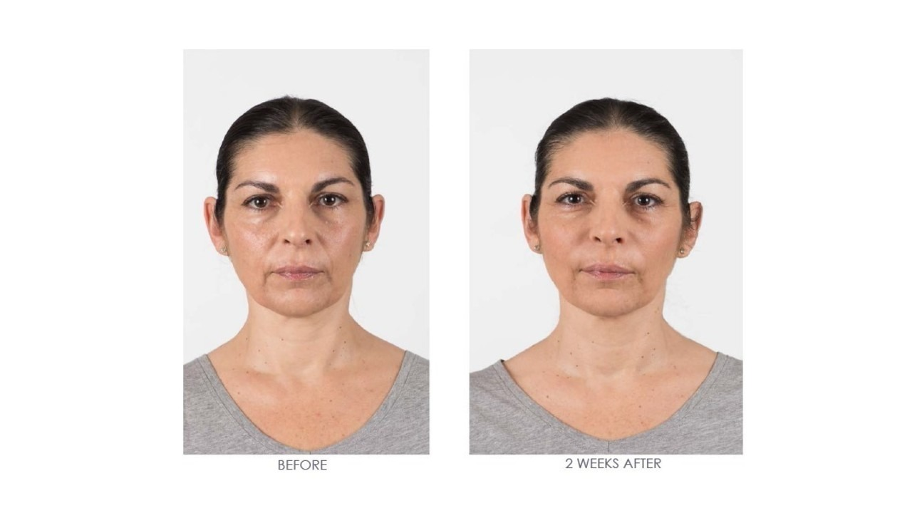 RHA® 3 for nasolabial folds