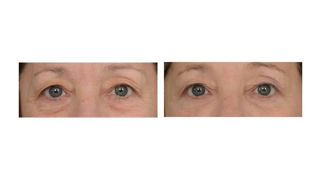 Redensity II™ for hollow undereyes