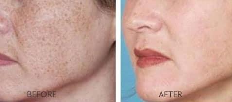Photofacial for Skin Tone and Texture
