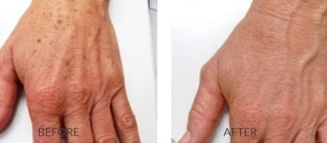 Photofacial for the Hands