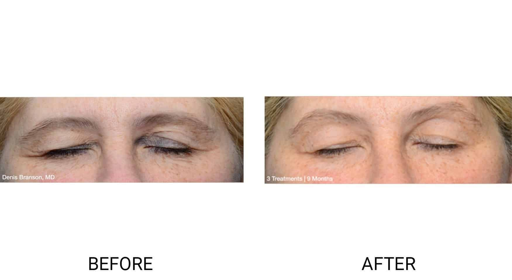 Thermi® for Drooping Eye Lids