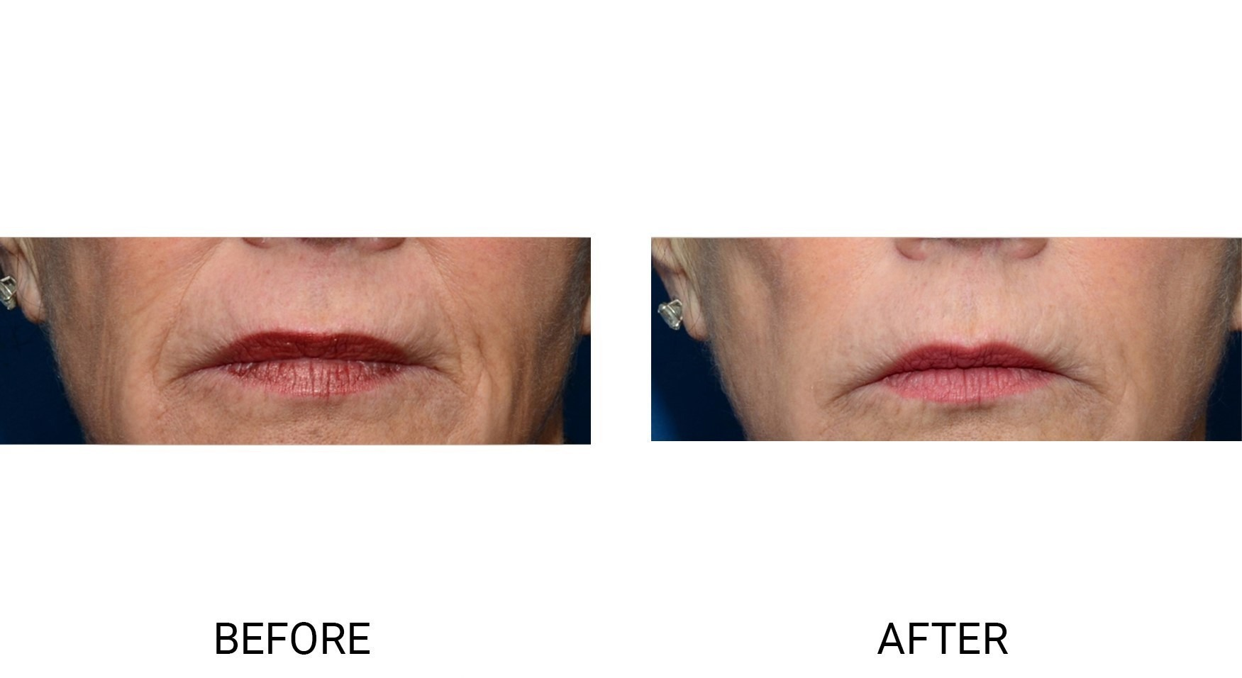 Thermi® for Lip Lines