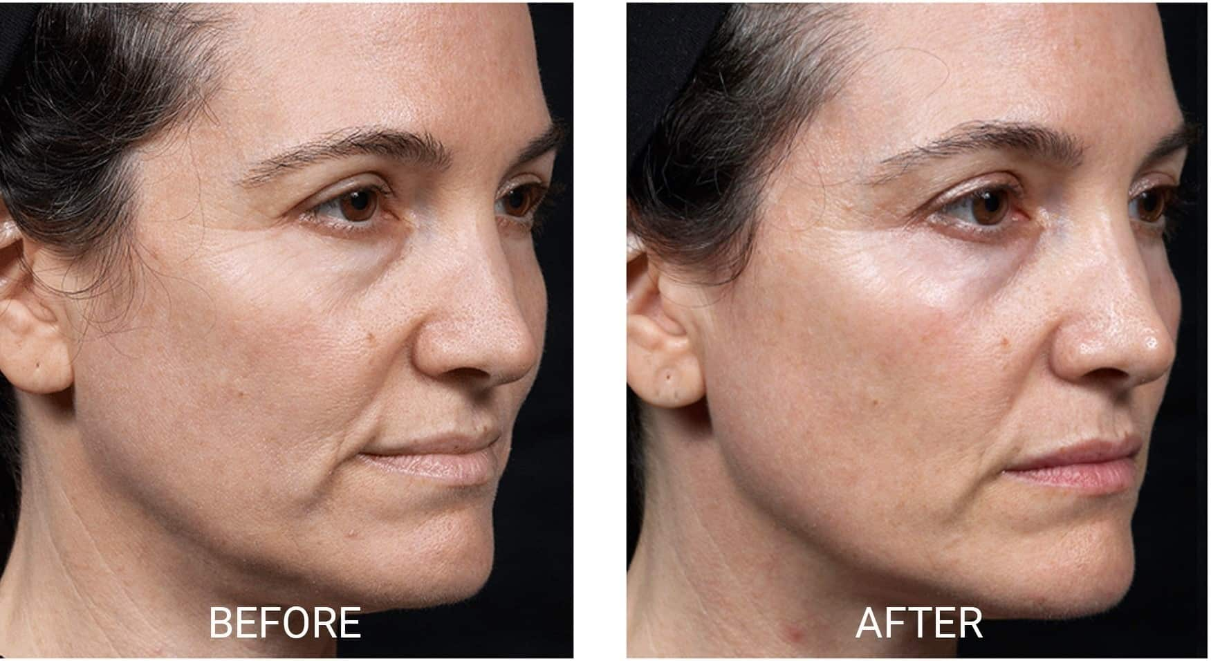 Venus Freeze™ for Jowls and Cheeks
