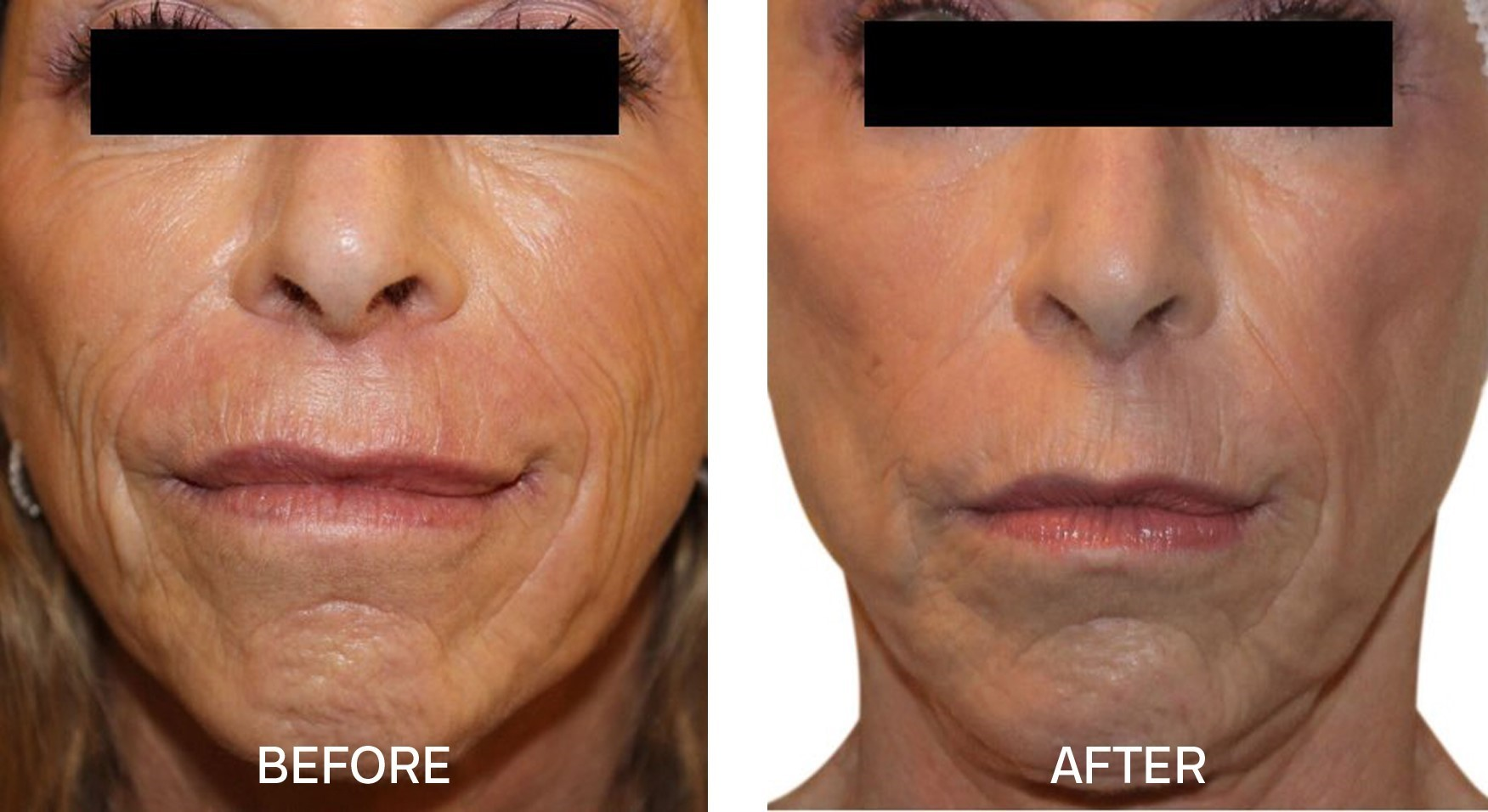 Venus Freeze™ for Wrinkle Reduction