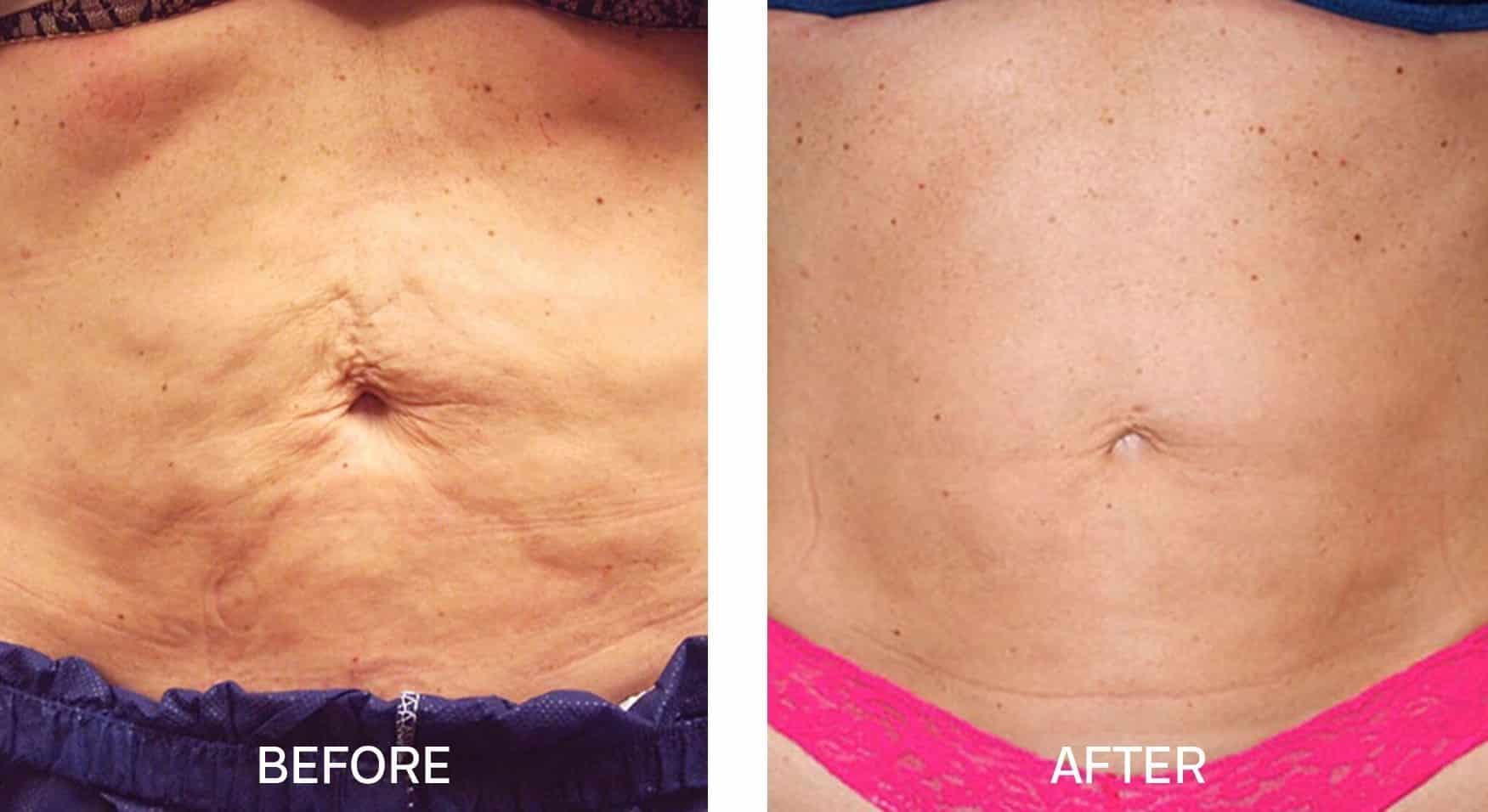 Venus Freeze™ for Stomach