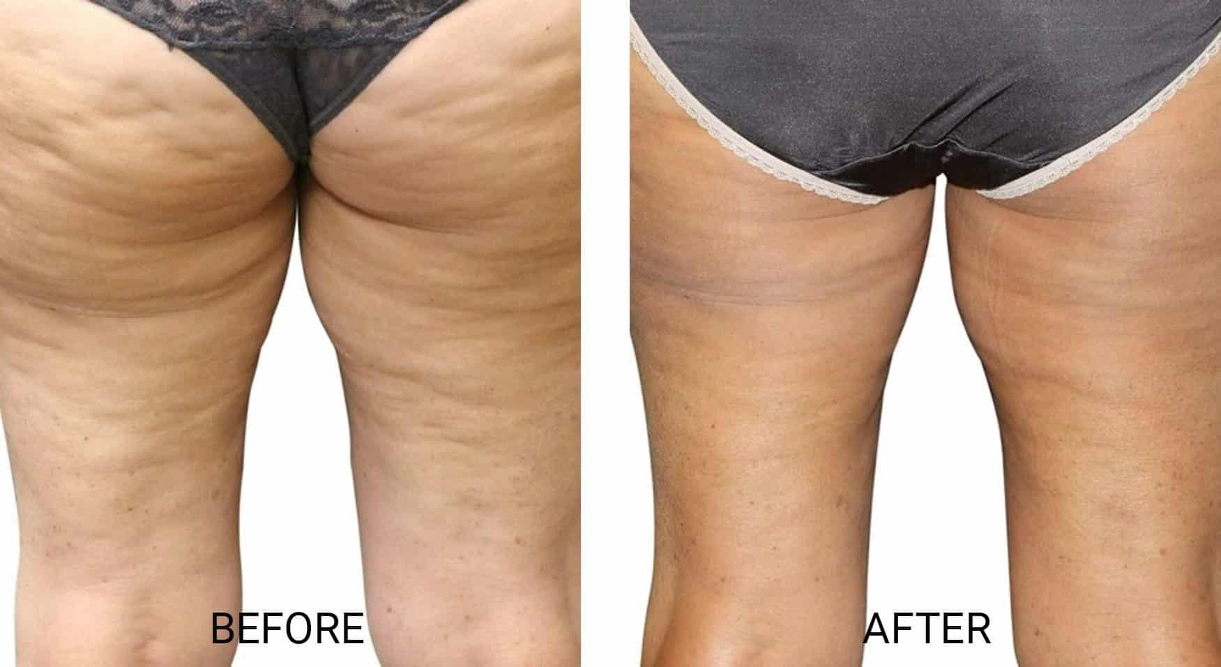 Venus Legacy® for Cellulite on Legs