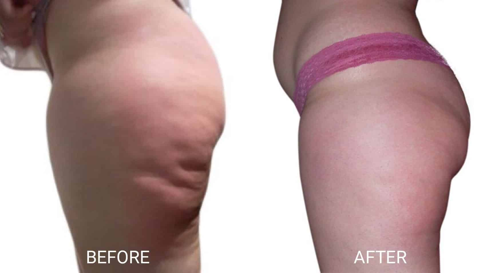 Venus Legacy® for Cellulite on Thighs