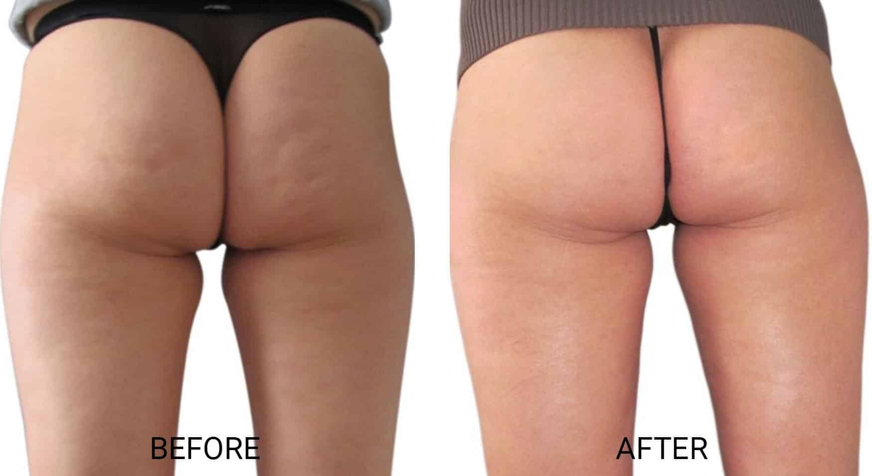 Venus Legacy® for Cellulite on Butt Cheeks
