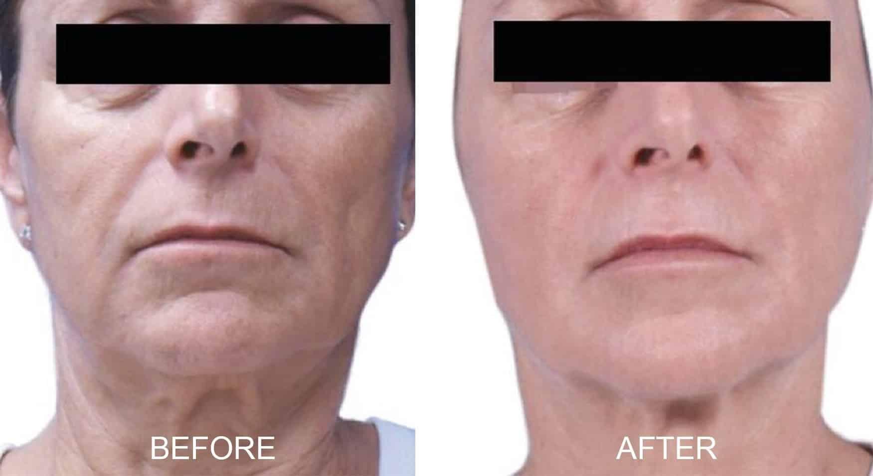 Venus Legacy® for Wrinkle Reduction