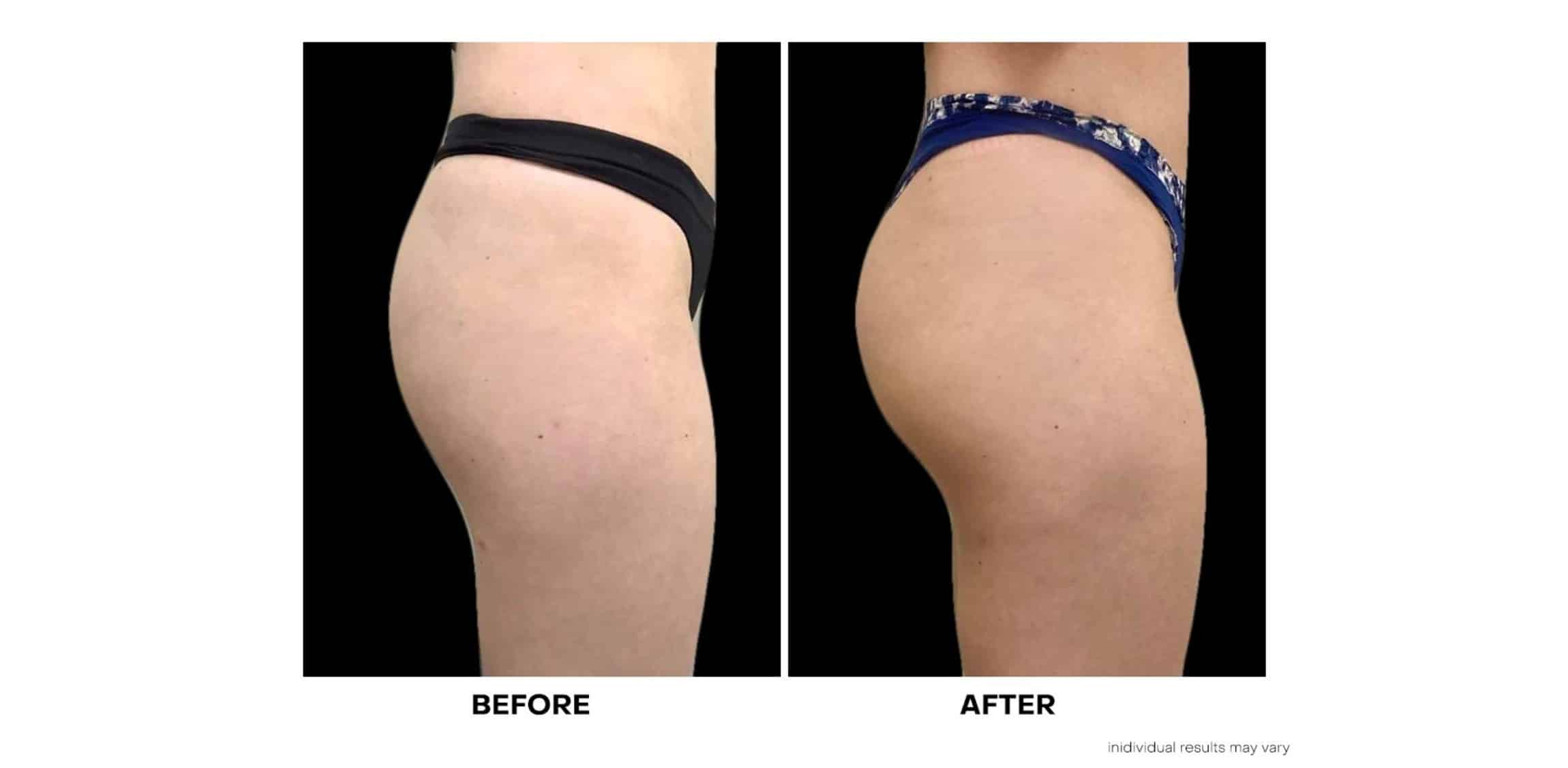 Before and After Sculptra Nonsurgical Butt Lift and Augmentation