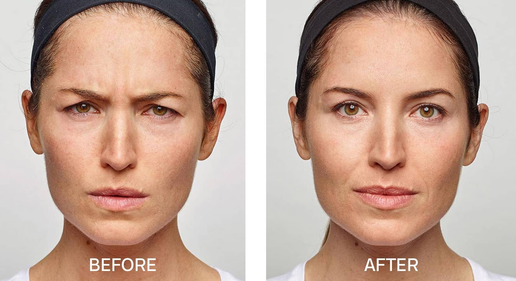 Dysport® for Frown Lines
