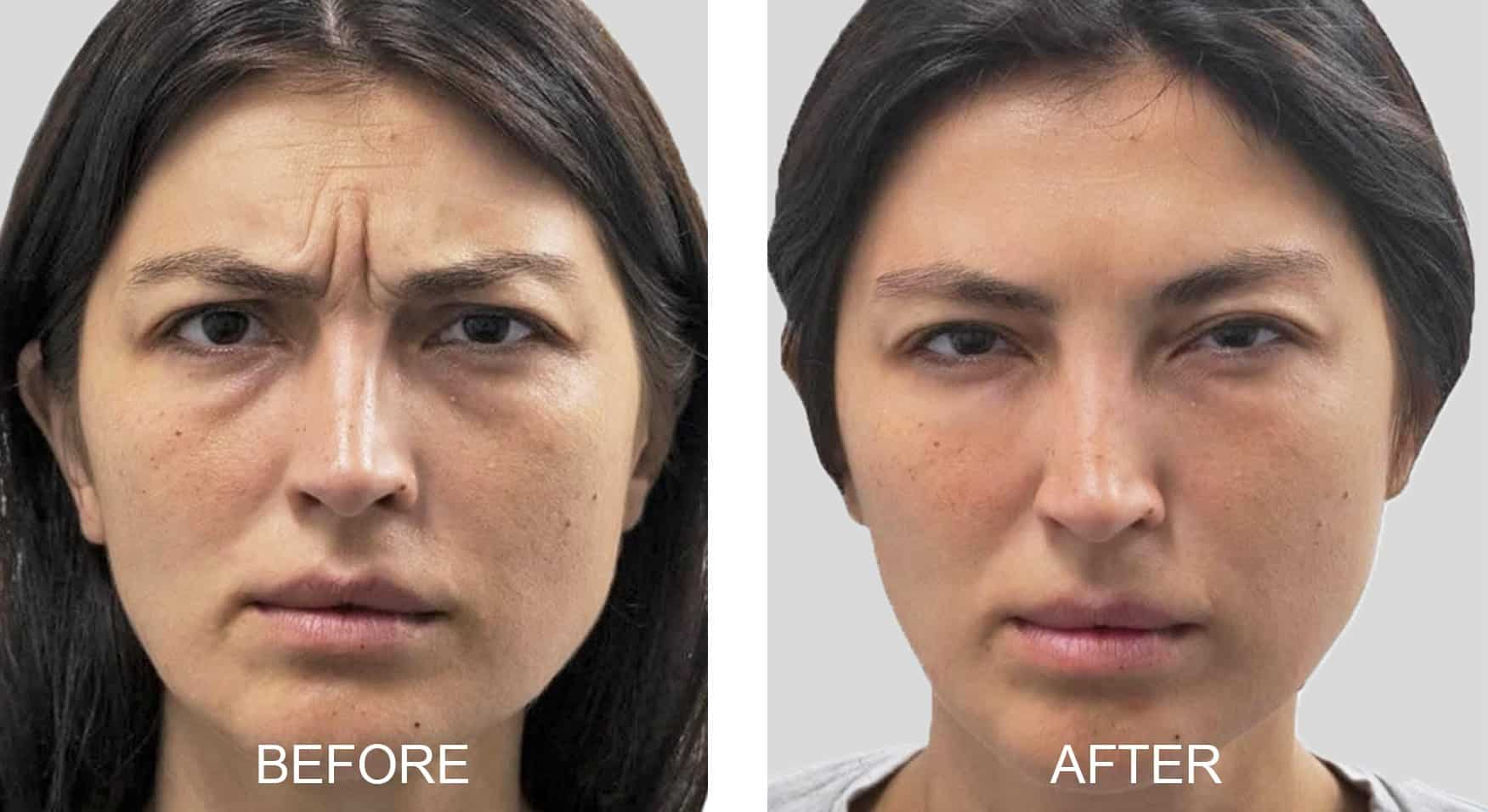 Dysport® for Forehead and Frown Lines