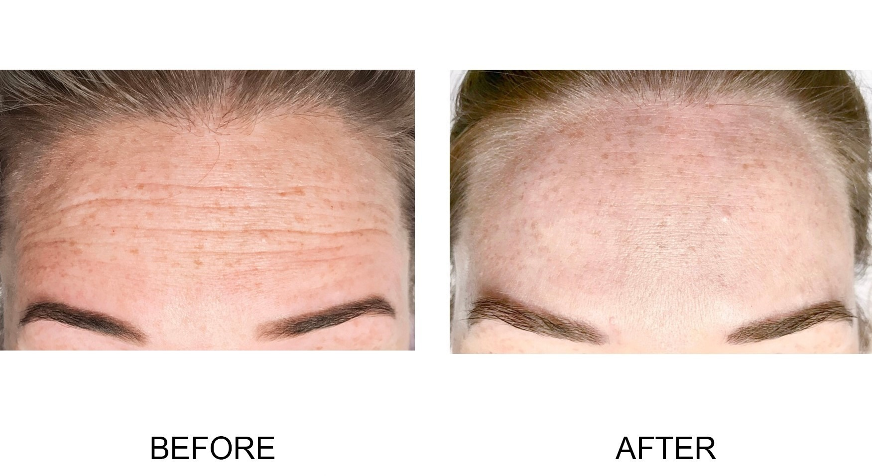 Dysport® for Forehead