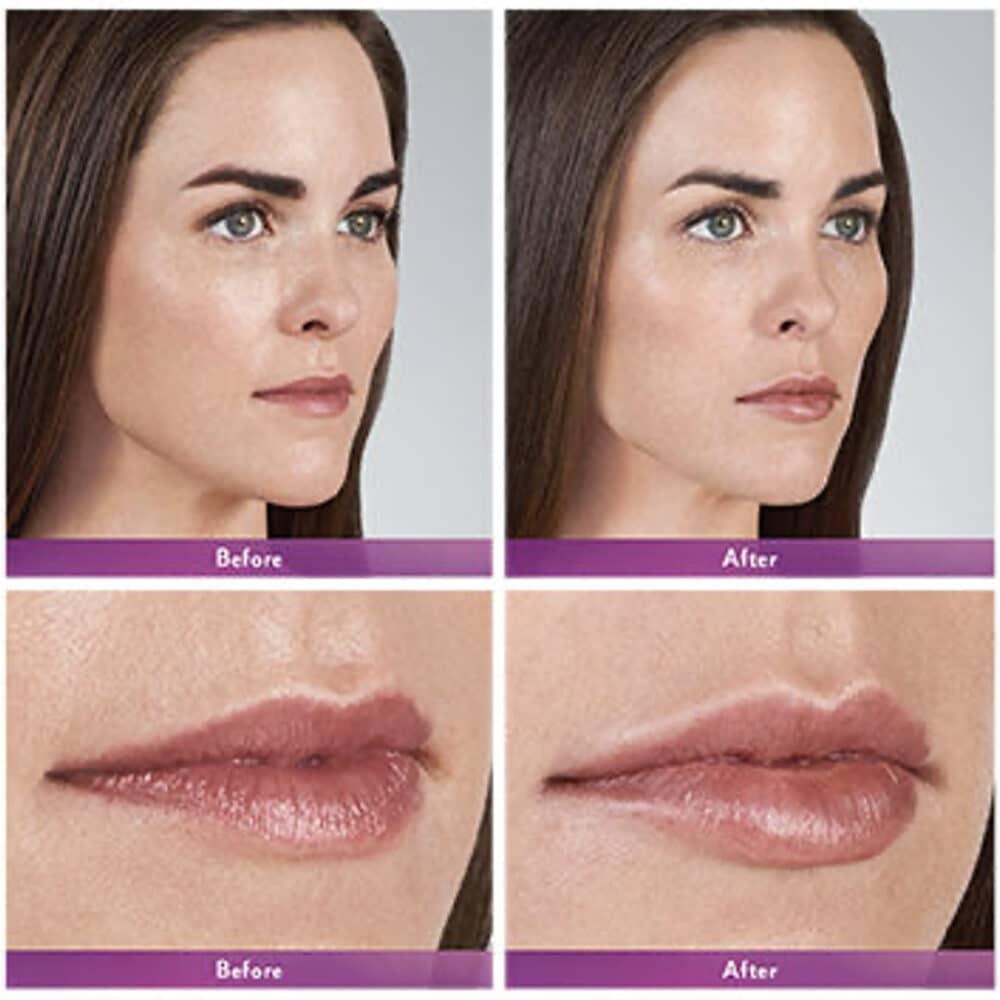 Before and After Lip Injections