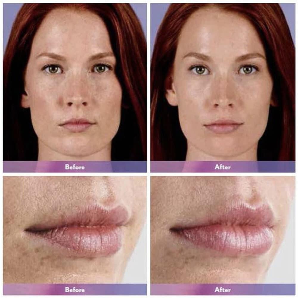 Lip Injections Toronto